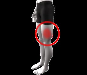 En izquierda pierna frecuente la entumecimiento