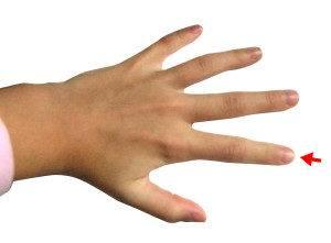porque se entume el dedo medio de la mano izquierda